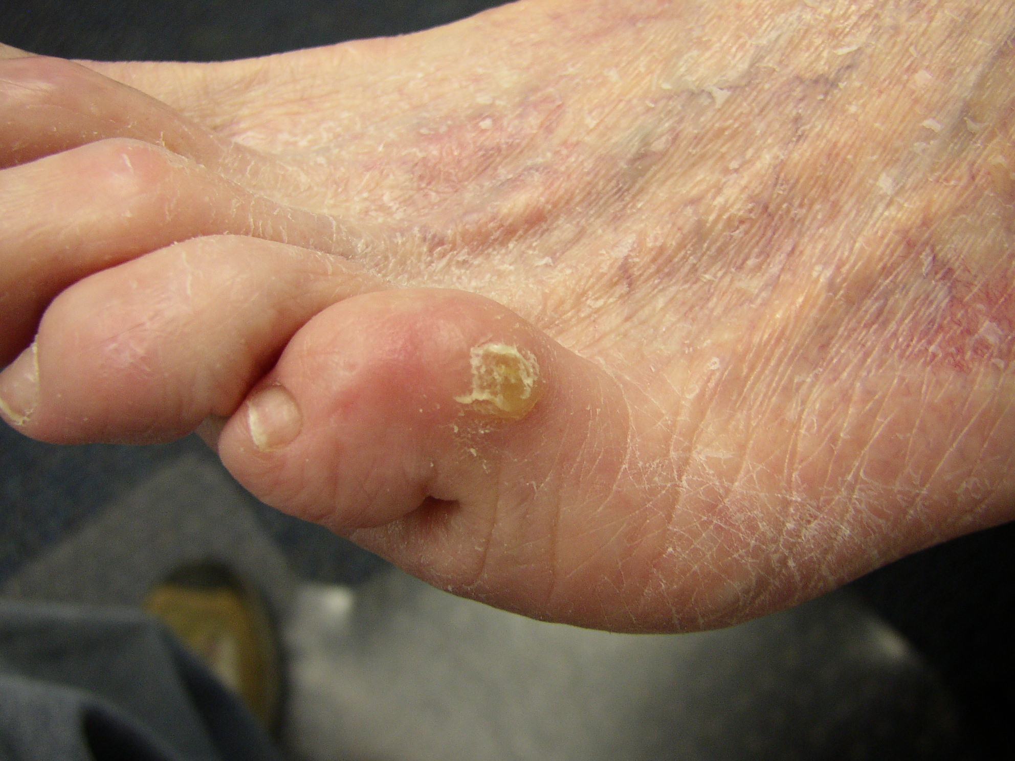 Corns and Calluses. Corn treatment on toes and feet | Patient